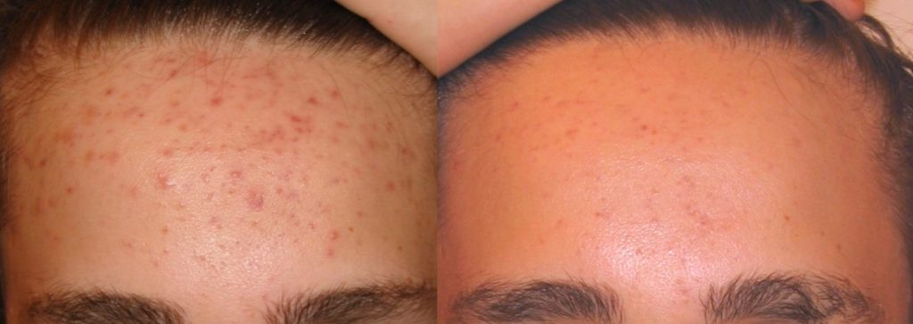 acne phototherapy